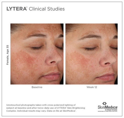 The Dermatology Center Of Worcester 187 Skinmedica